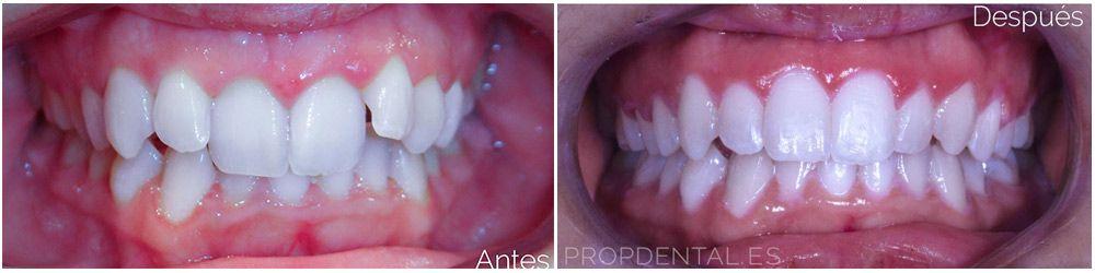tratamiento ortodoncia brackes antes después