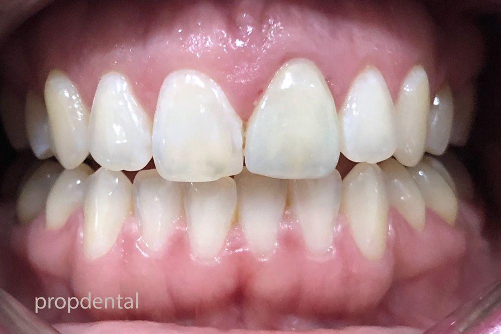 tratar mancha dientes con carillas dentales