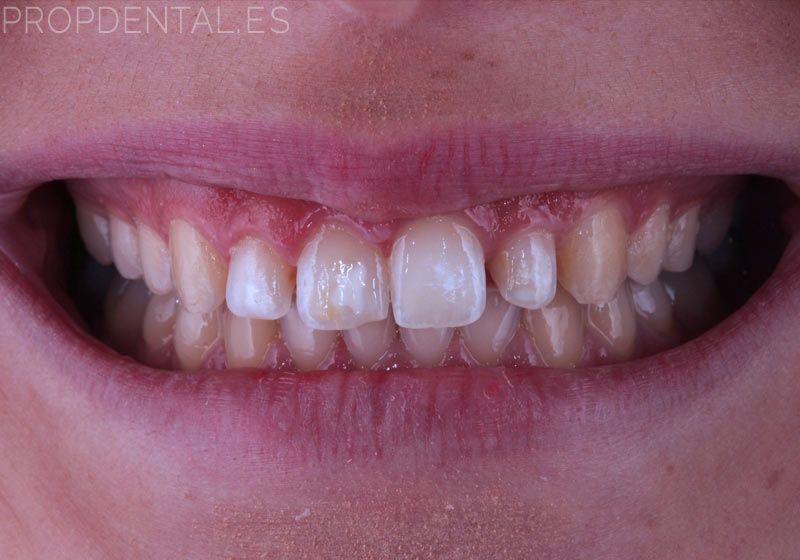 caso clinico de prótesis dentales sin metal