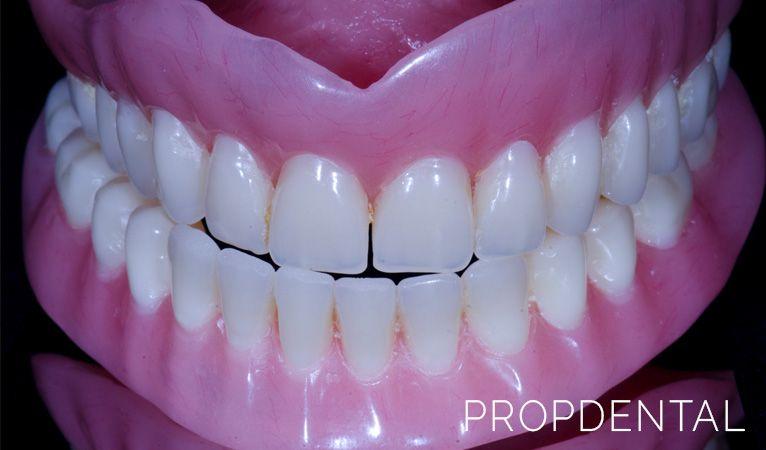 dentadura postiza completa