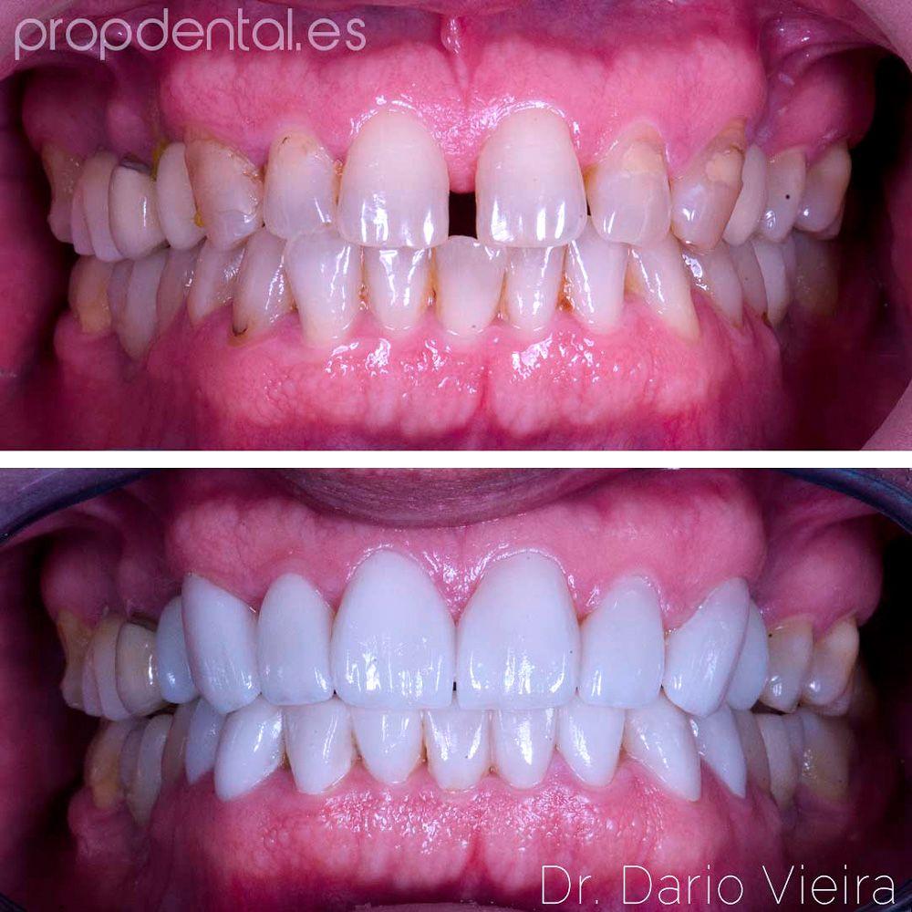 indicación de las prótesis dentales