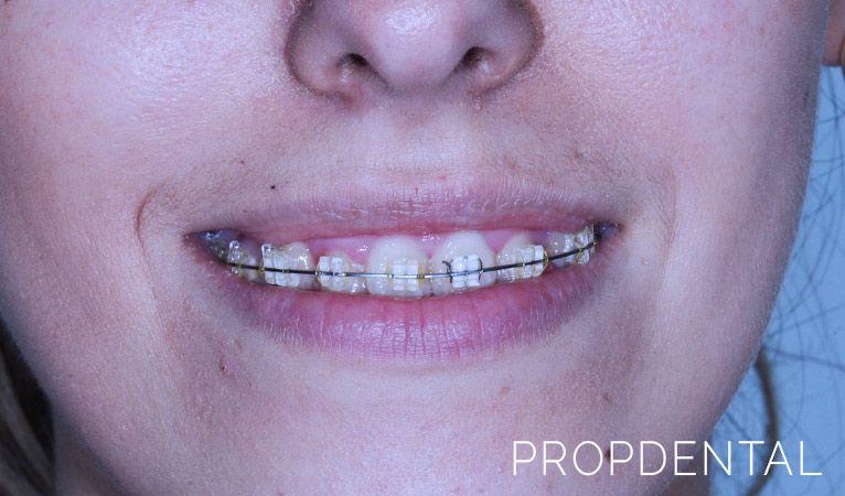 las claves la ortodoncia adultos