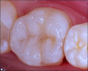 precios caries dental