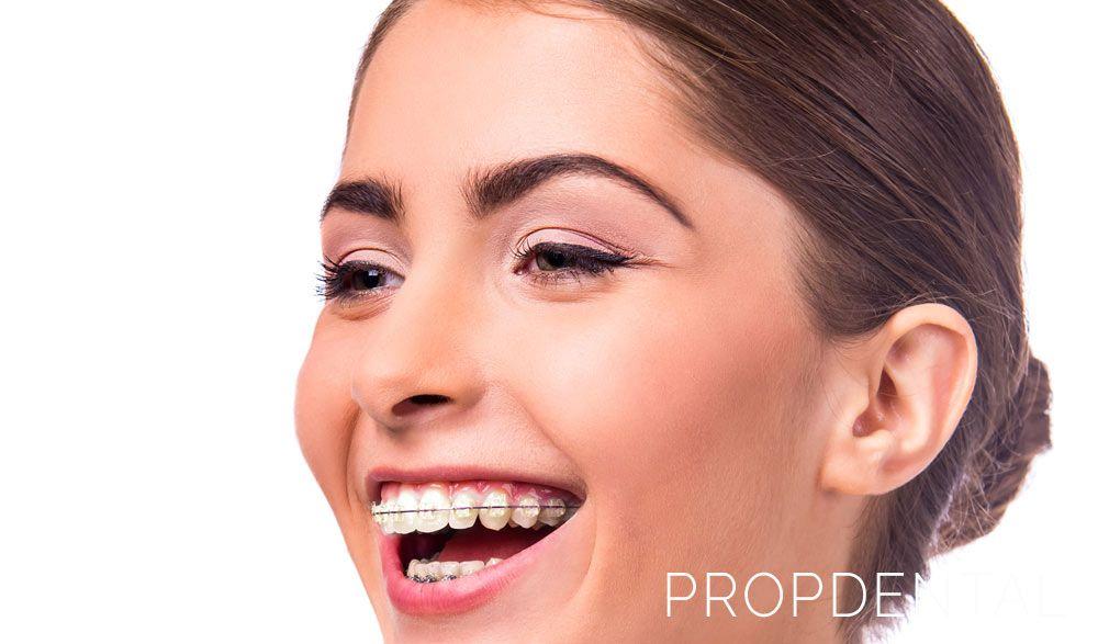 que tipo ortodoncia necesito