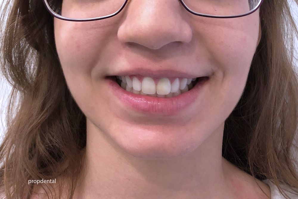 sonrisa con brackets invisibles linguales