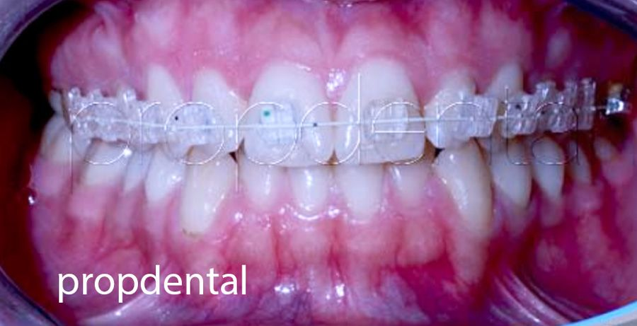 brackets dentales de ortodoncia