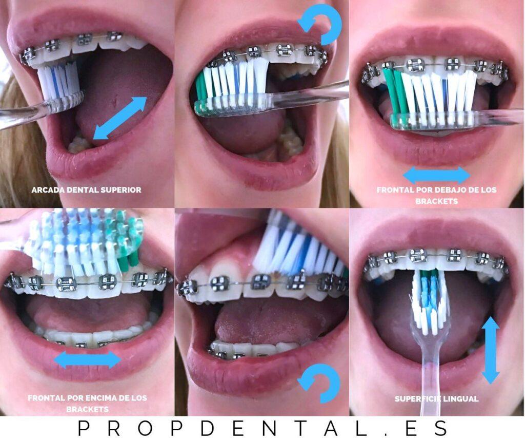 cepillado dental con brackets