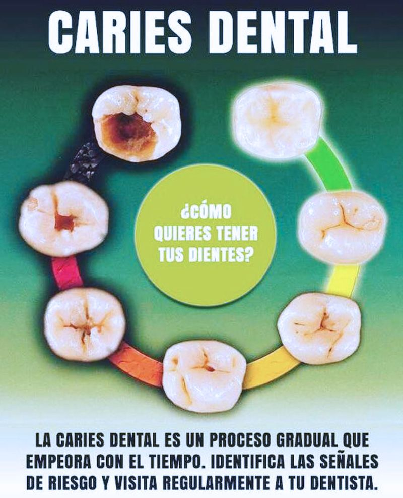 Tratar la caries dental en Madrid y Barcelona