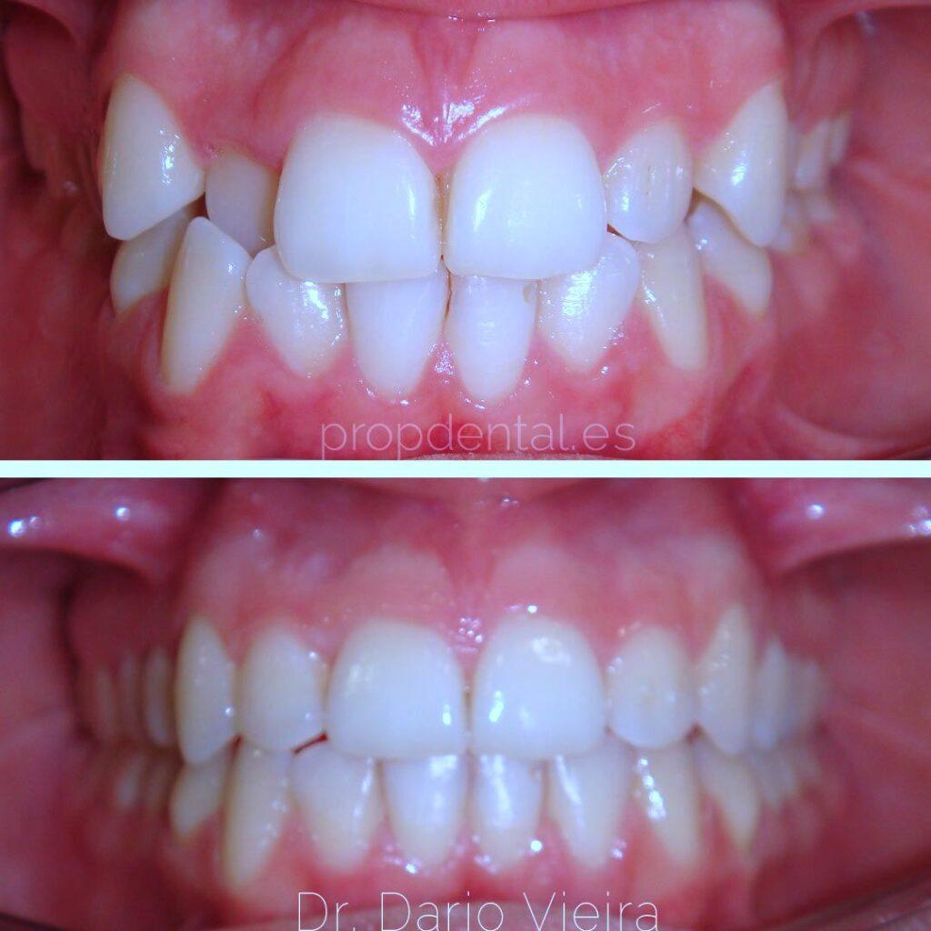 Por que eligir ortodoncia con Invisalign