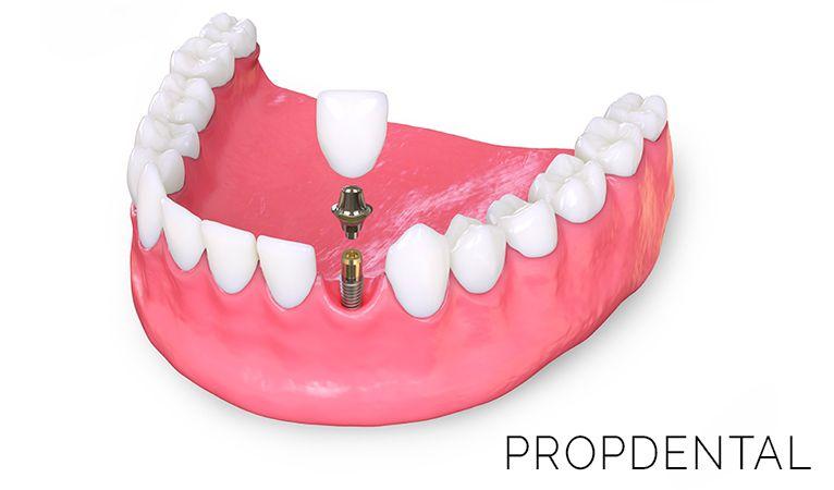 factores de riesgo en implantes dentales