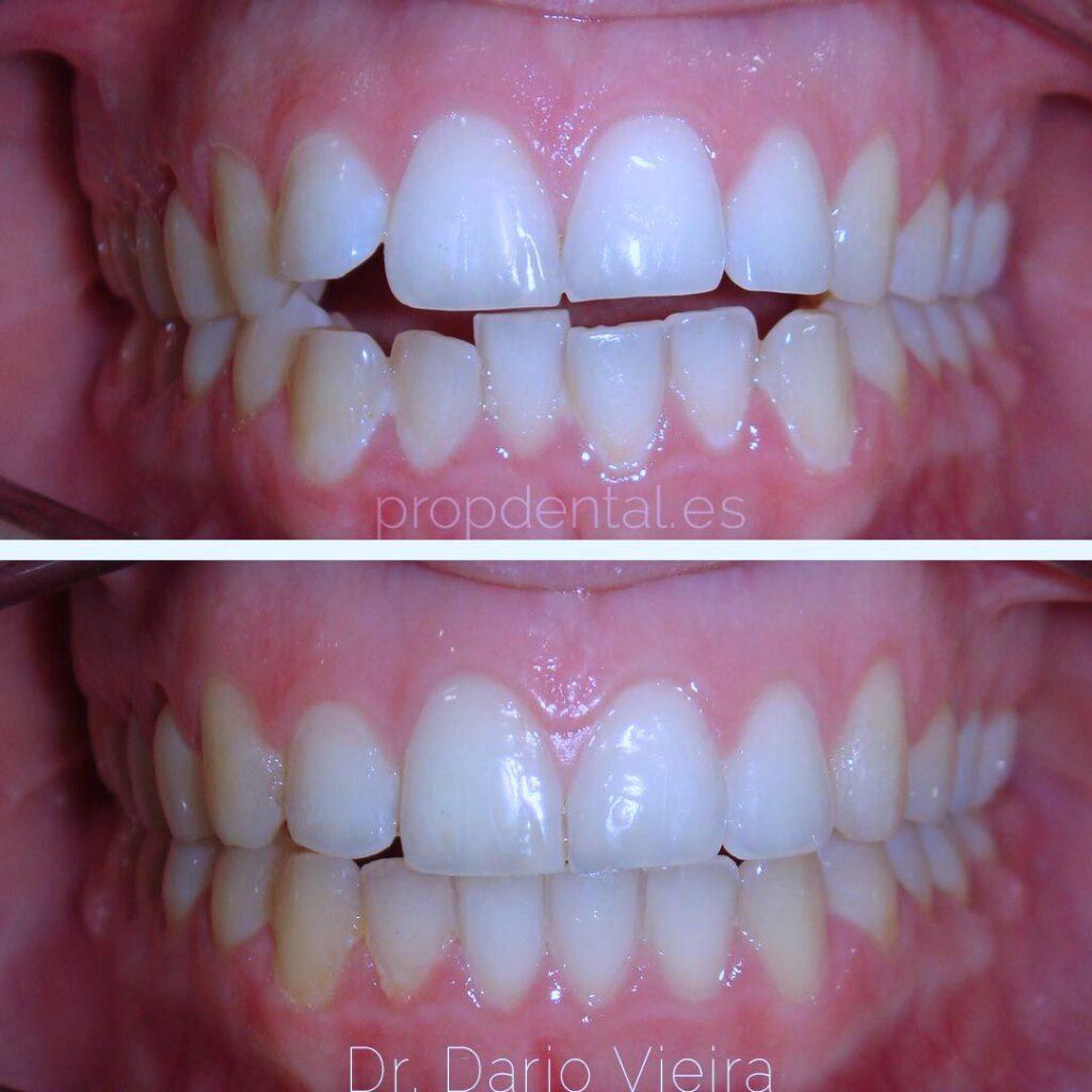 ortodoncia para adultos en Barcelona