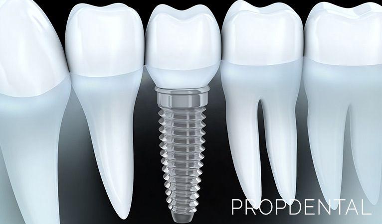 que debes saber sobre los implantes dentales