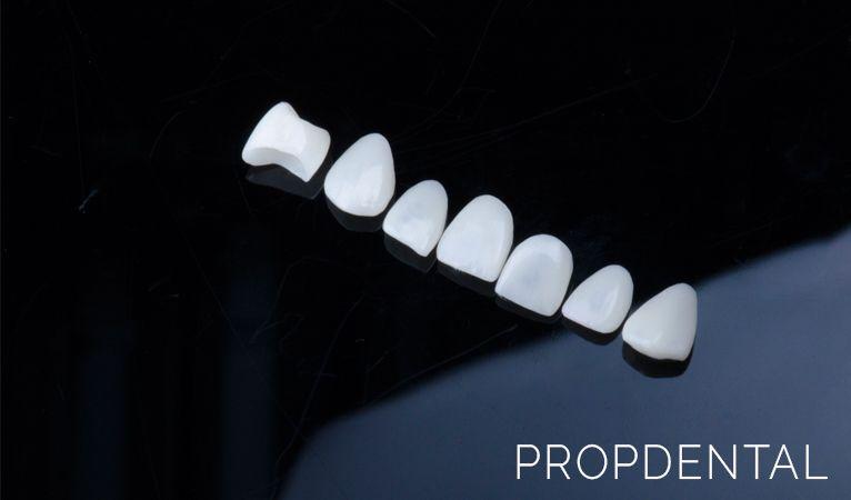 métodos para alinerar tus dientes carillas en barcelona