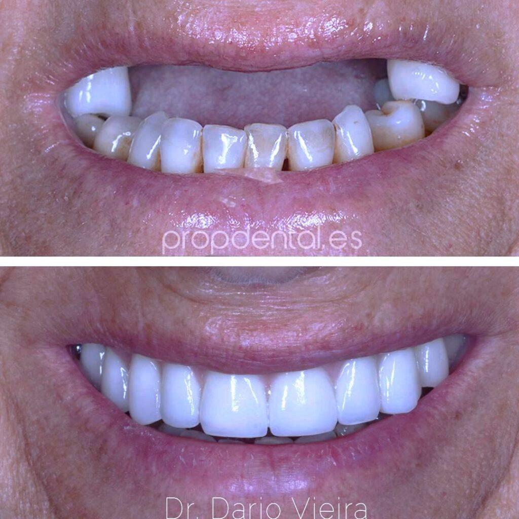 prótesis sobre implantes dentales de Propdental en Barcelona y en Madrid