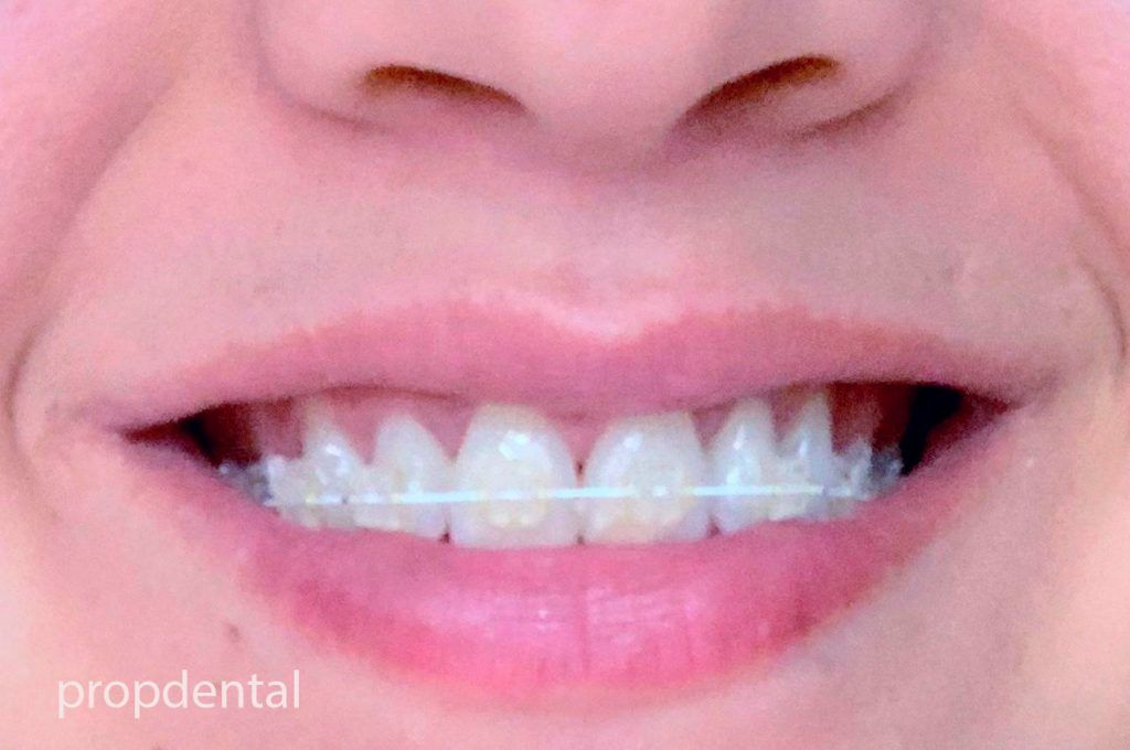 brackets dentales en Madrid y Barcelona