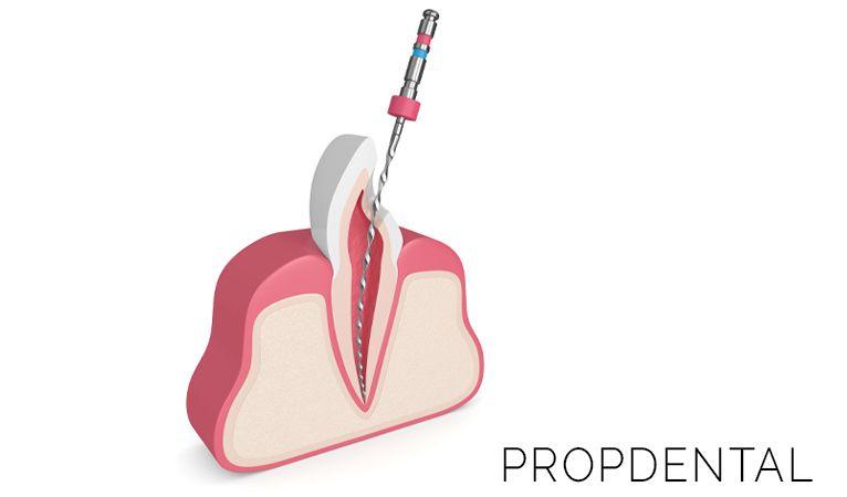 cuidados después de la endodoncia