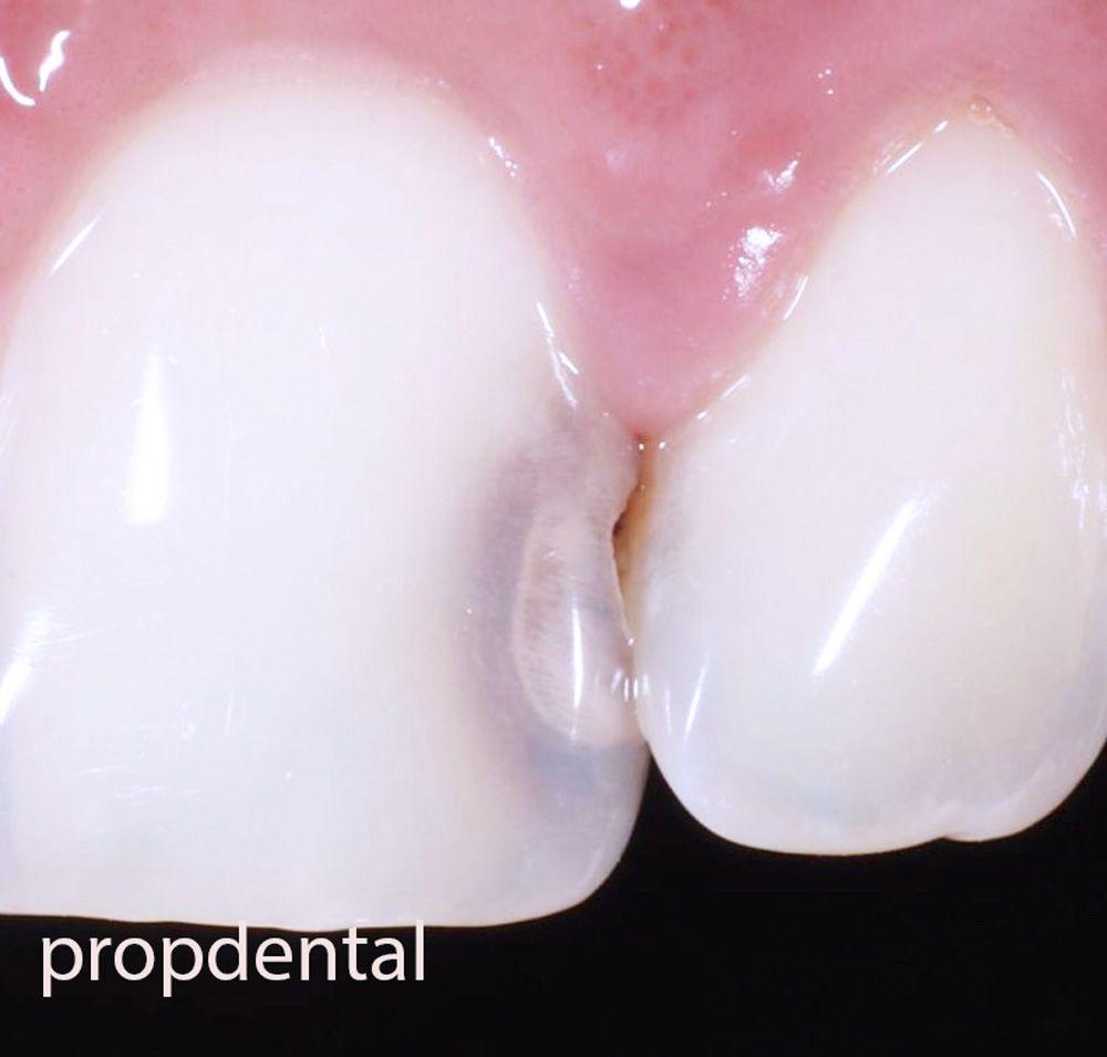 agujero en un diente frontal que esta picado por una caries dental