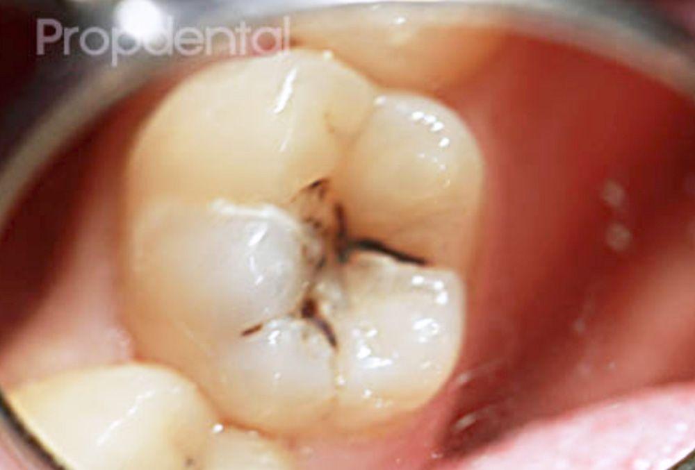Agujero en un diente por caries. Foto de Muela picada