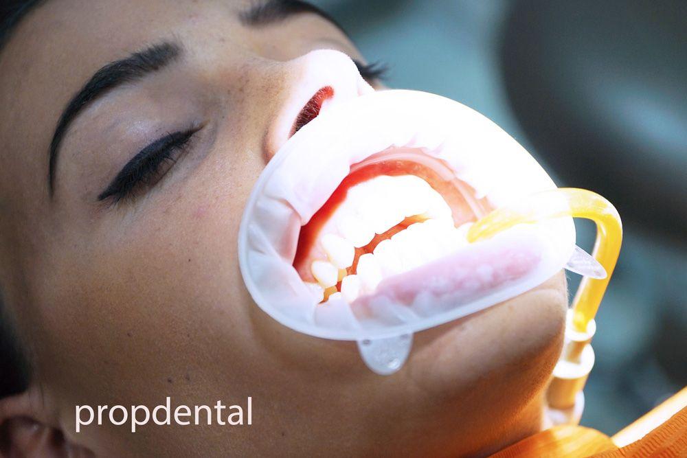 sensibilidad en un diente empastado