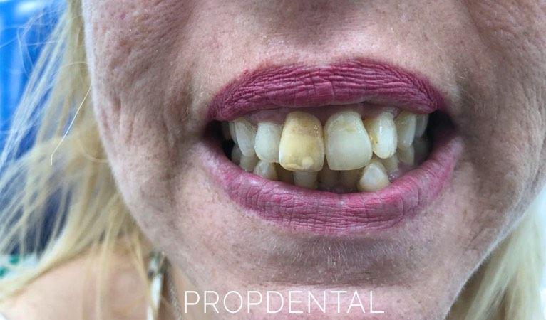 Signos que indican la muerte de un diente