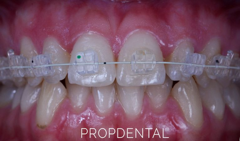 complicaciones comunes de los brackets dentales