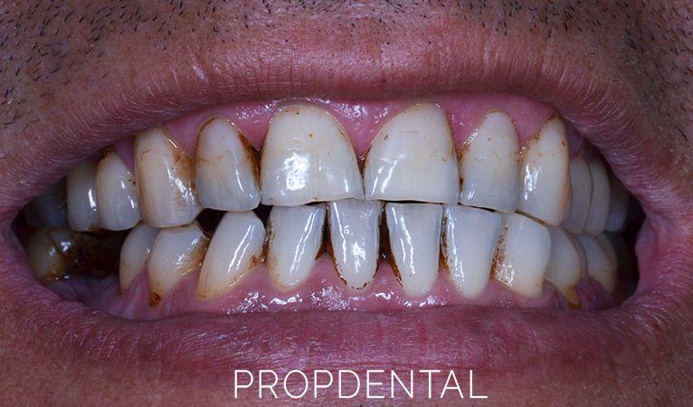 Manchas negras entre los dientes ¿Como tratarlas?