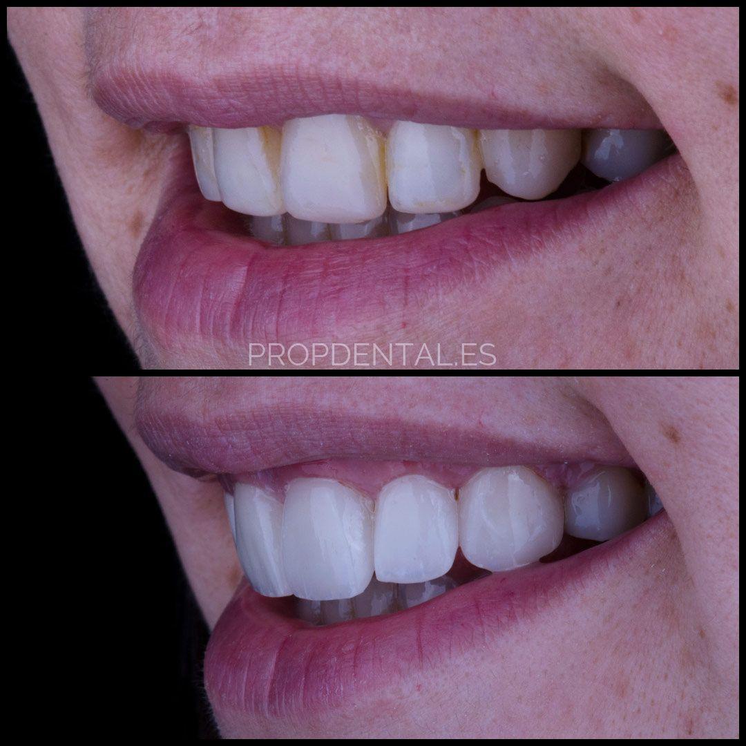 factores-a-tener-en-cuenta-al-colocarse-carillas-en-los-dientes