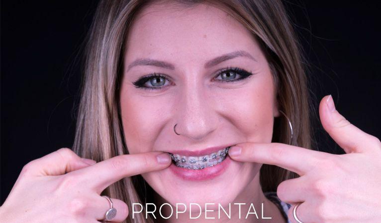 cual es la mejor ortodoncia