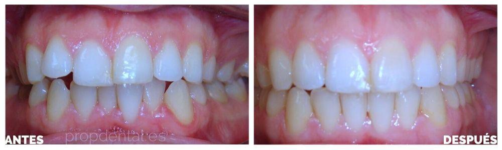 avances en tratamientos dentales en la odontología en el siglo XXI