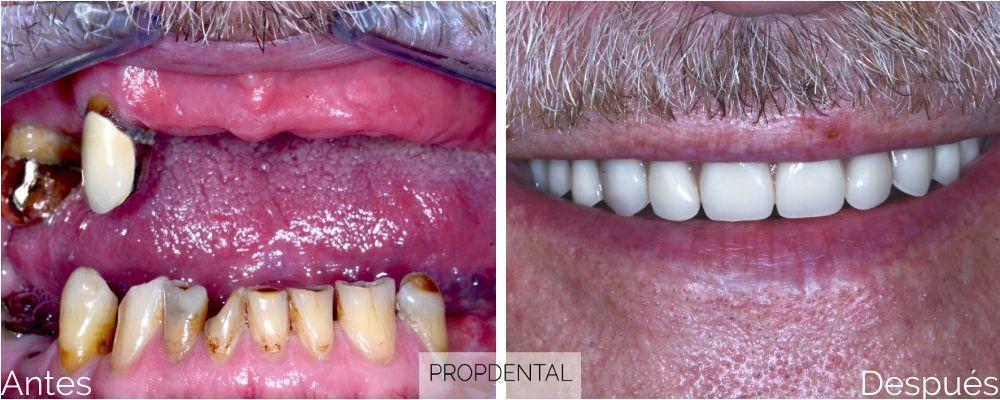 Como evitar que te quedes sin dientes