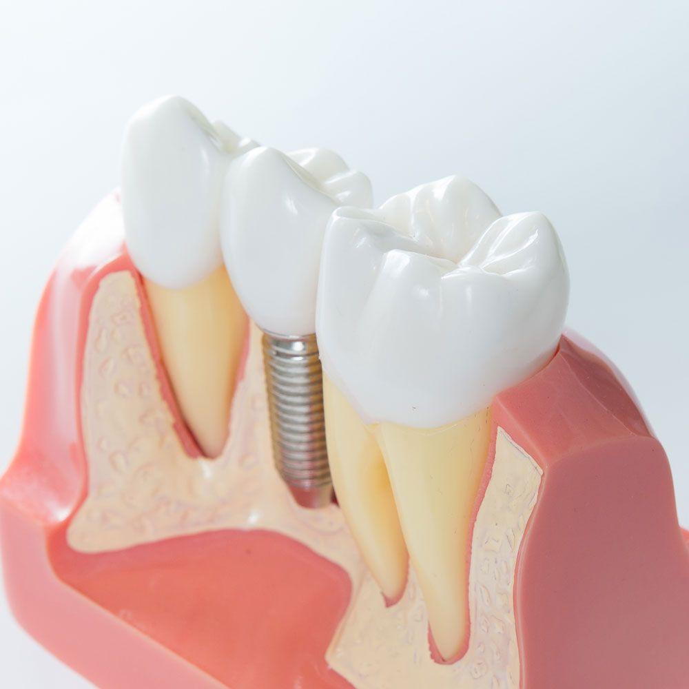 Por qué colocar un implante dental si te falta un diente