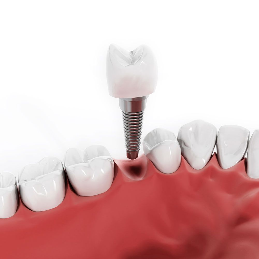 ¿Qué puede ocasionar la ausencia de dientes?