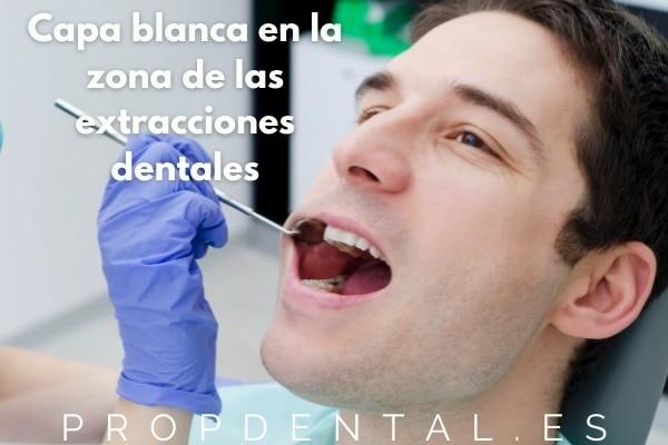 Capa blanca en la zona de las extracciones dentales