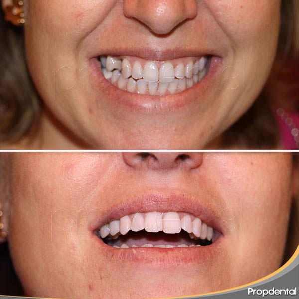 diente provisional para implante