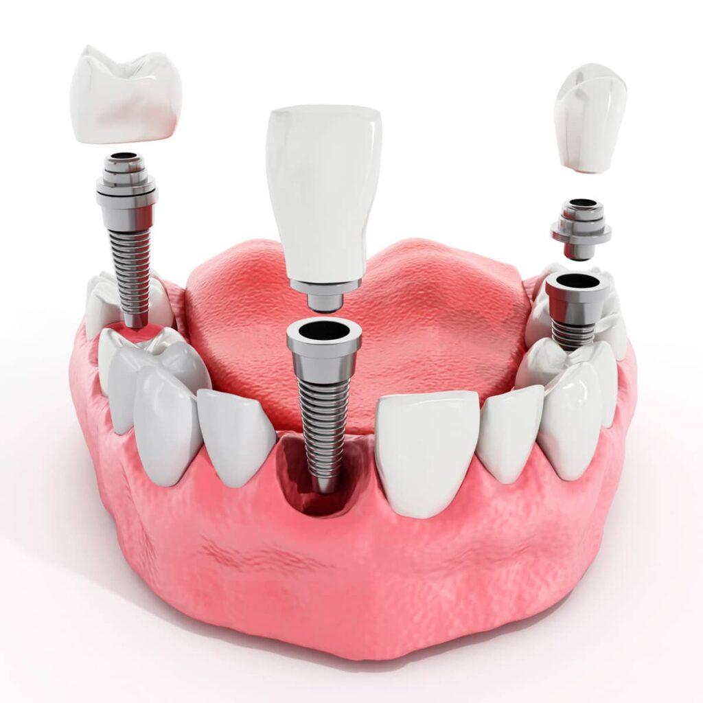 soluciones para la falta de piezas dentales