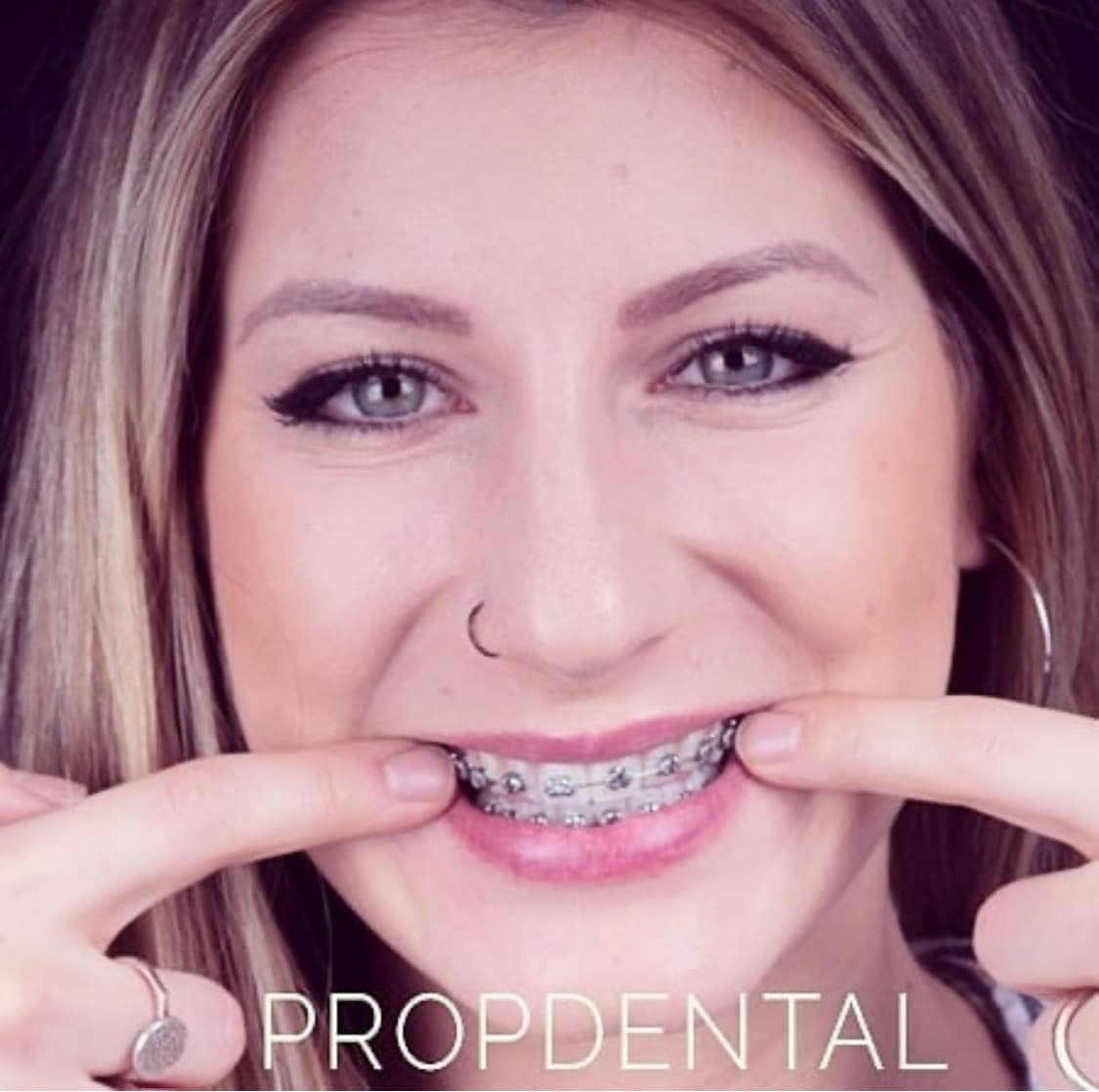 ortodoncia Barcelona precio